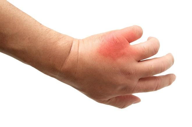 【れんこんが効く?】アレルギー反応を抑える食べ物はどれ?